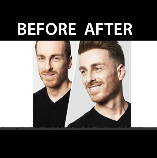 before/after